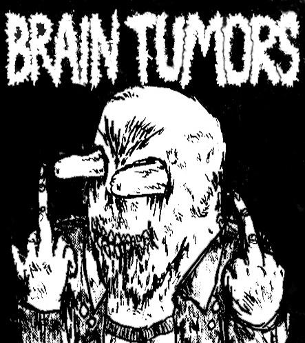 Tonight: Brain Tumors